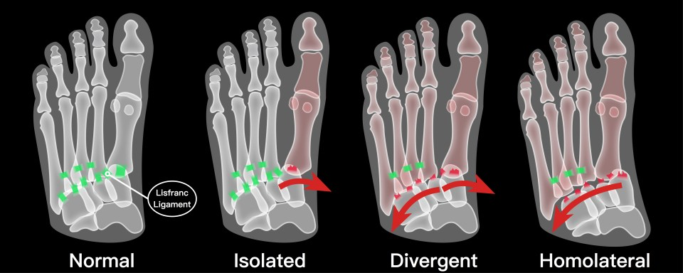 An illustration of the anatomy of the midfoot and classification of Lisfranc injuries