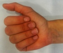 An image of a closed hand showing normal anatomical position of fingers