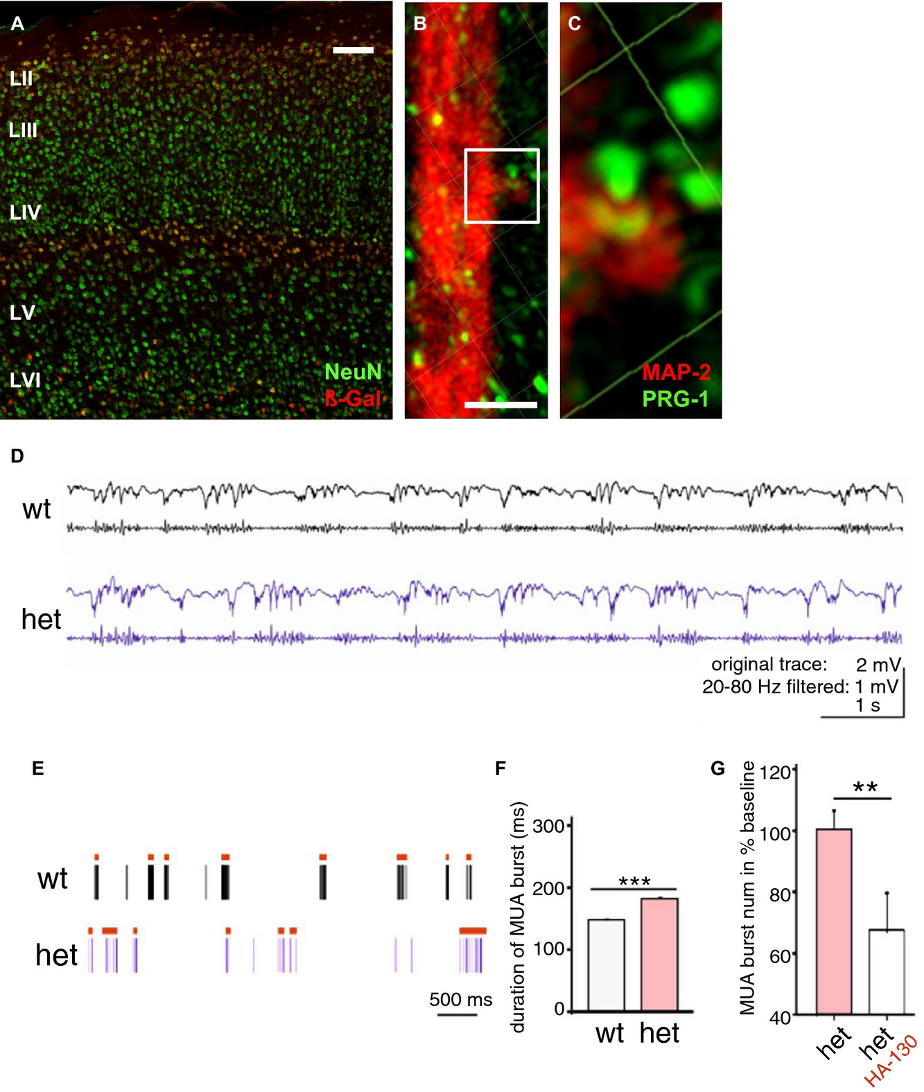 Molecular cause and functional impact of altered synaptic lipid signaling due to a prg‐1 gene SNP | EMBO Molecular Medicine