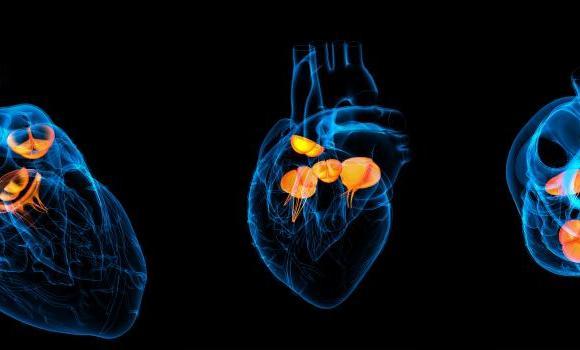 ΠΡΟΓΕΝΝΗΤΙΚΟΣ ΕΛΕΓΧΟΣ: Διάγνωση ανεπάρκειας (φυσήματος) βαλβίδας σε έμβρυο από το 1ο τρίμηνο της εγκυμοσύνης