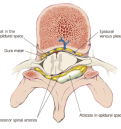 spinal epidural abscess [ 1030 x 970 Pixel ]