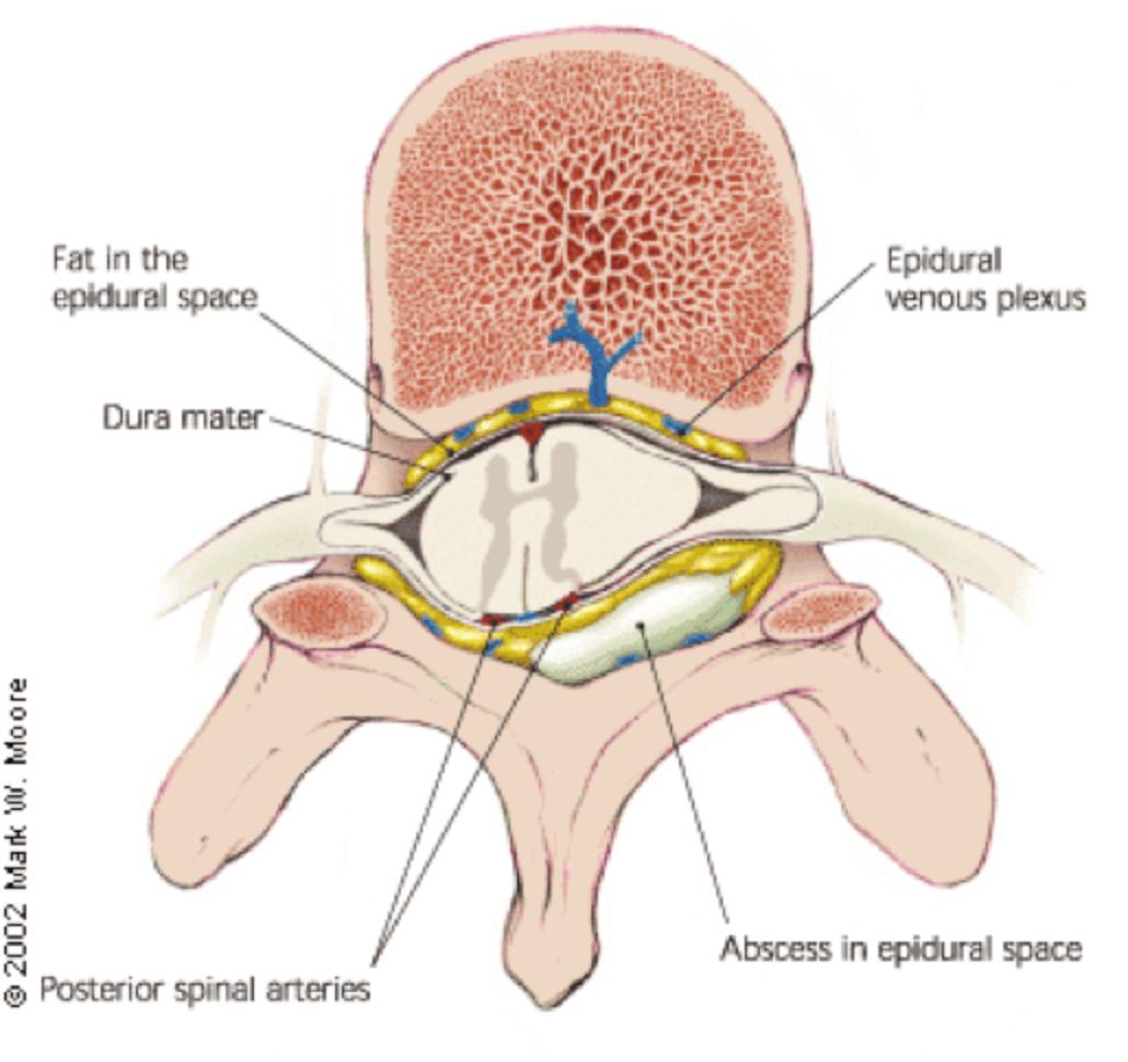 hight resolution of spinal epidural abscess