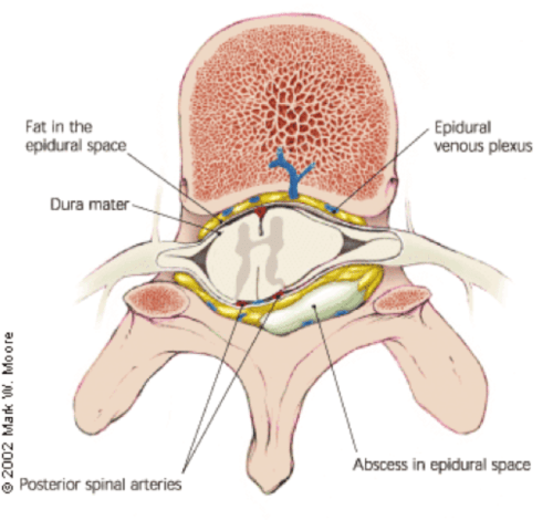 small resolution of spinal epidural abscess