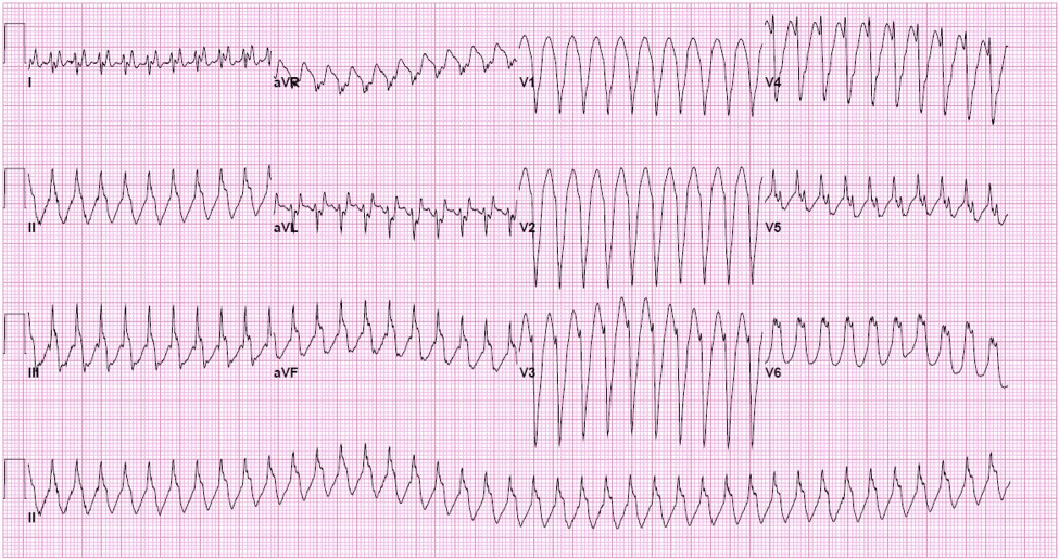 ACLS Review: Amiodarone vs Procainamide for stable VT ...