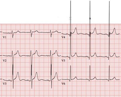 emDOCsnet  Emergency Medicine EducationSubtle ECG