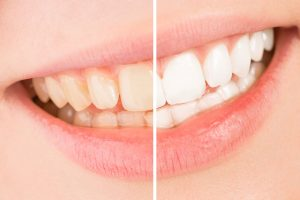 Clear Teeth: Causes and Treatments