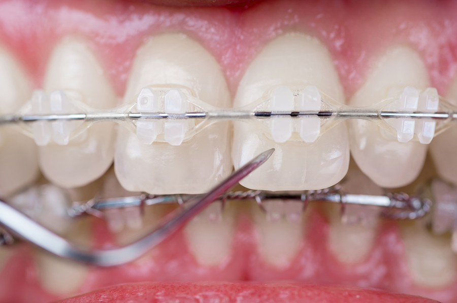 Ceramic Braces How they Look and Feel