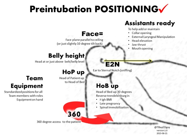 Preintubation Positioning