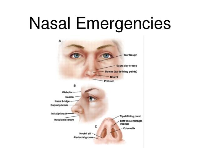 Nasal Emergencies
