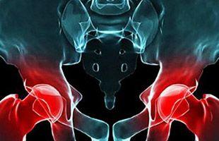 Afectados por prótesis defectuosas Depuy