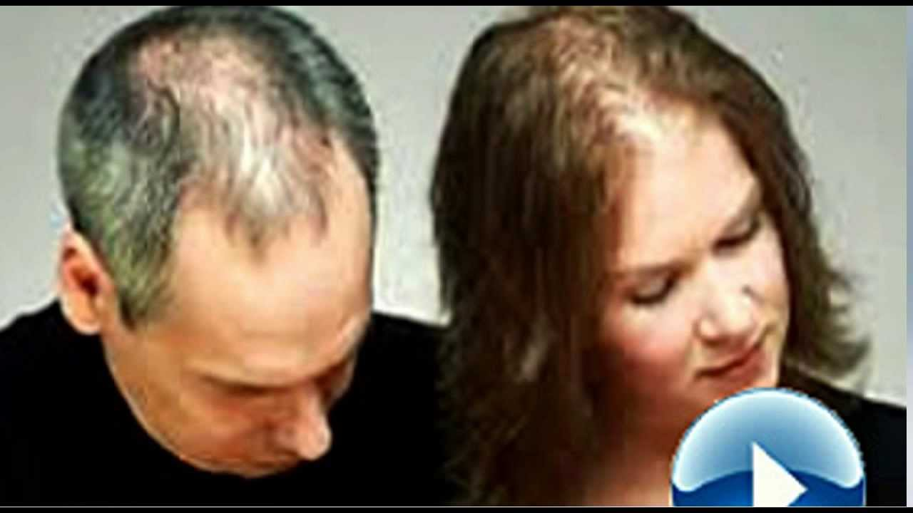 Proven Tips How To Stop Hair Loss