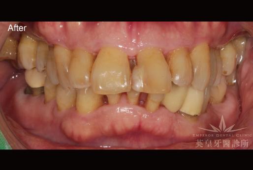 英皇牙醫診所 - 診療項目-牙周治療