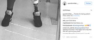Quentin Miller Feet, Lost Leg
