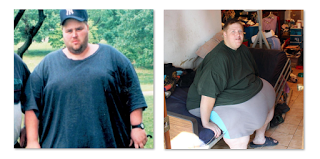 My 600 LB Life James Before And After 2017 Update