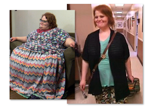 Nikki Webster My 600 lb Life Before And After Pics