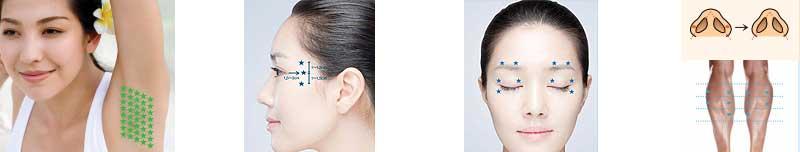 Aplicaciones Botox