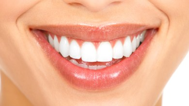 Photo of What to Know about Teeth Bonding Procedure
