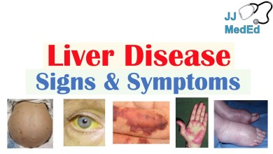 Photo of Signs and Symptoms of Liver Disease