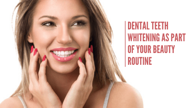 Photo of Dental Teeth Whitening as Part of Your Beauty Routine