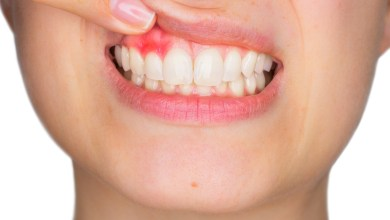 Photo of What Are the Most Common Dental Problems?