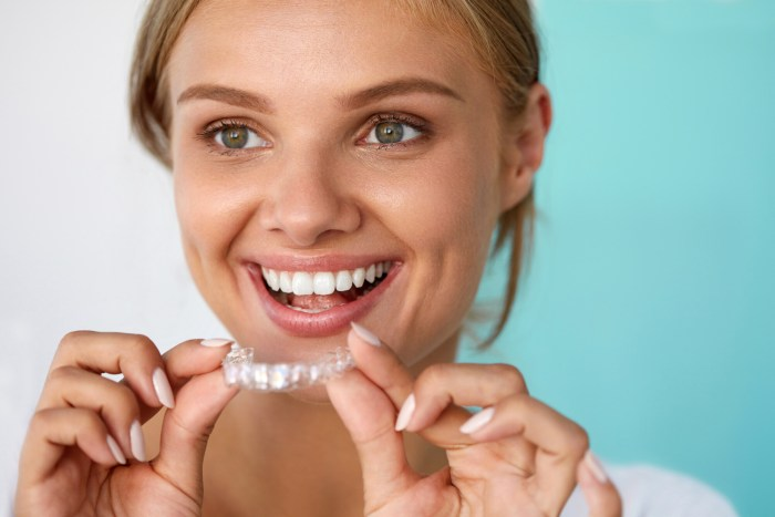 does invisalign really work