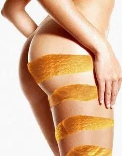 Celulitis: ¡A terminar con el problema!