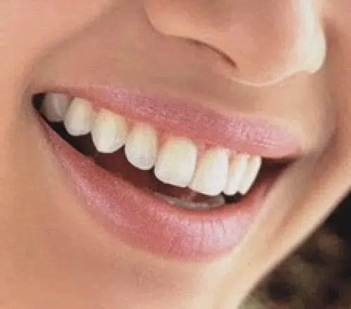 Cómo cuidar nuestras encías para conseguir unos dientes sanos y fuertes. Parte I.