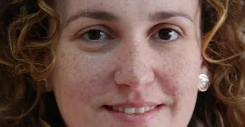 Cómo prevenir, conocer y tratar las manchas de la piel
