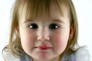 Herpes labiales en los niños