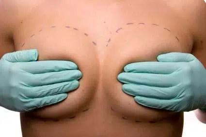 Todo lo que hay que saber sobre implantes mamarios. (Parte I)