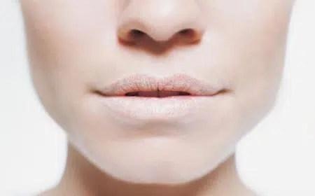 Labios agrietados: Causas, cómo prevenir y Remedios