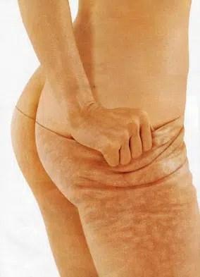 Mitos comunes sobre la celulitis