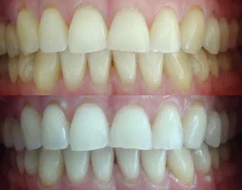 Soluciones naturales para obtener dientes blancos