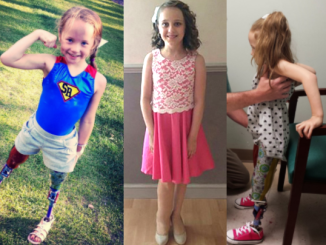 Photo of three young girls with leg prosthetics