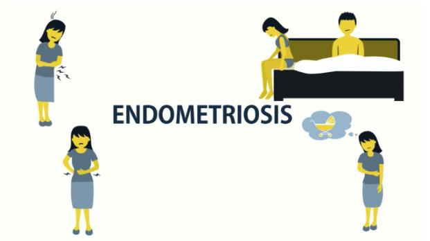 what is endometriosis deep