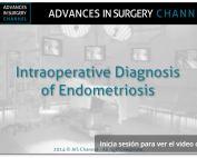 Endometriosis después de una histerectomía