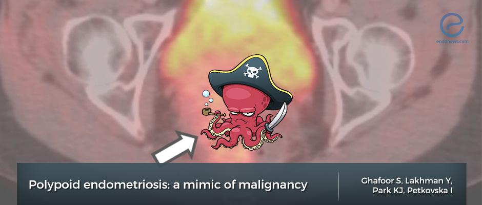 polypoid endometriosis magnetic resonance