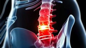 hernia de disco cirugia