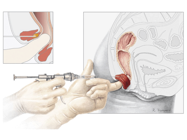 PTQ Faecal Incontinence Implant