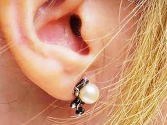 a06957f75cd03452e09a4f29cddde4d9 - Co nám říká barva ušního mazu o zdraví?