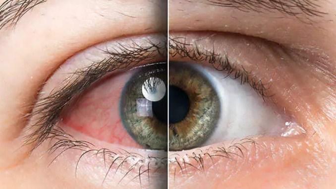 Oči je nutno správně živit. Poradíme jak.