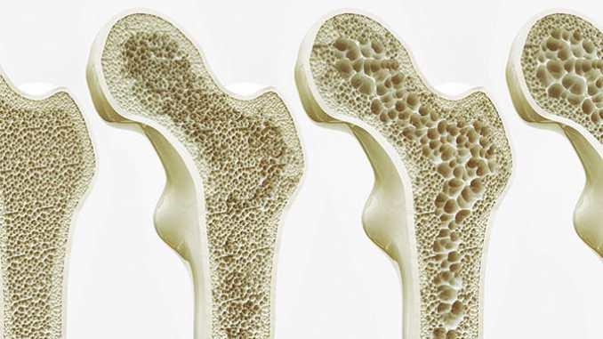 Osteoporóza nesouvisí jen s hormony.
