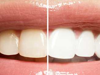 Přírodní bělení zubů zaručí zářivě bílý chrup.