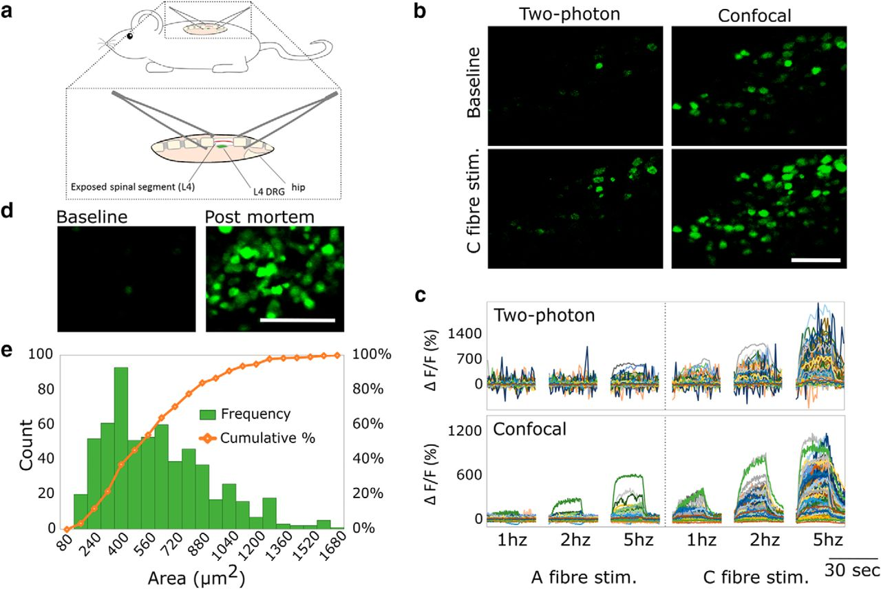 Labeled Spinal Cord Diagram Large Scale In Vivo Recording Of Sensory Neuron Activity