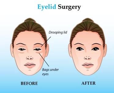 Blepharoplasty Candidates Upper Eyelid Surgery