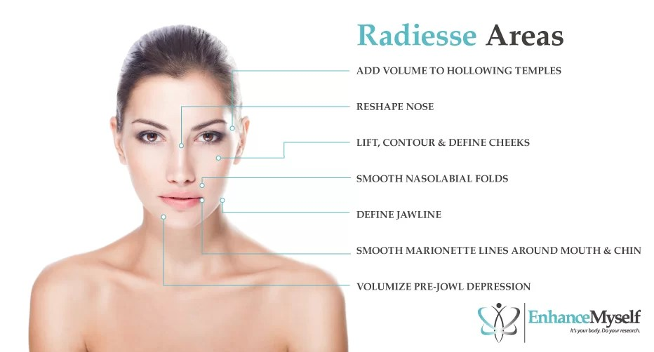 Radiesse Filler (Nose Cheeks etc.) Cost Side Effects ...