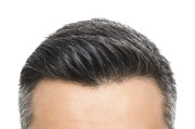 hairline lowering surgery forehead
