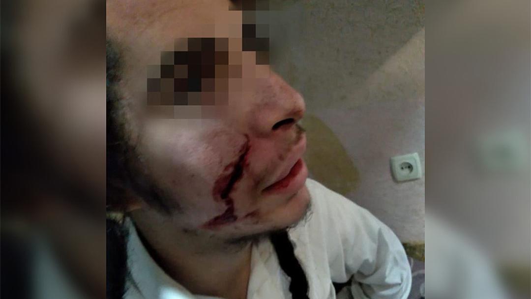 Adolescente atacado en Uman, herido en el rostro