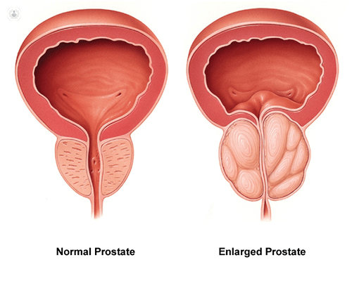 The Prostrate Protocol