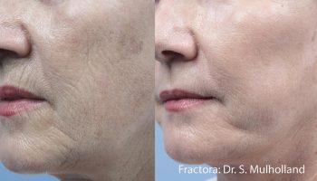 skin-tightening6